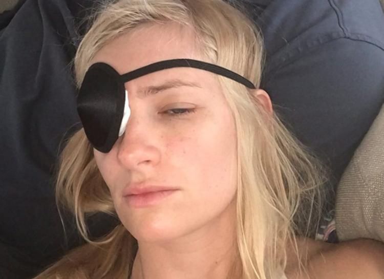 Beth Behrs a punto de perder un ojo por el ataque de un perro